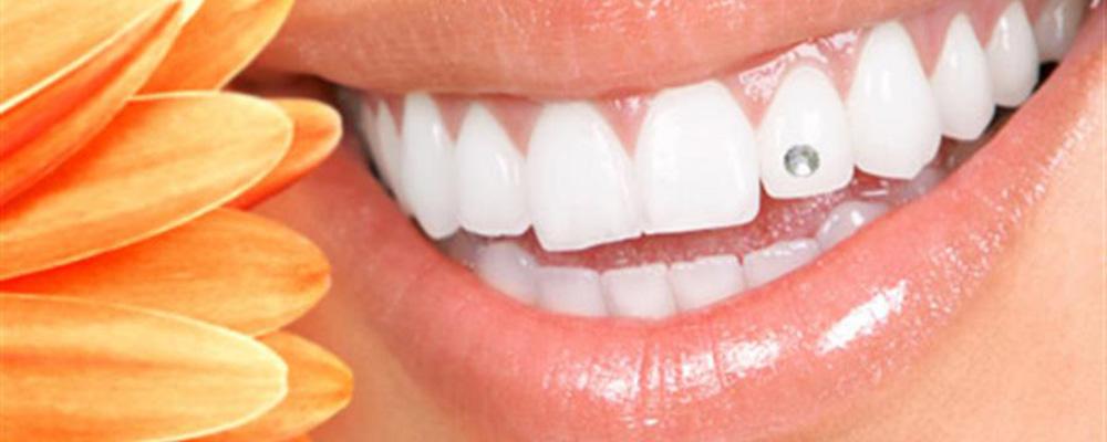 Bijoux dentaire | Clinique De Denturologie Lelièvre