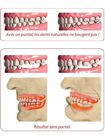Prothèse partielle | Clinique De Denturologie Lelièvre